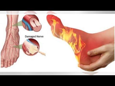 La varicosité des parasites