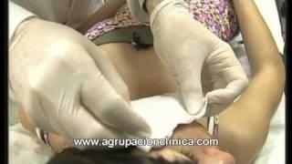 Terapia fotodinamica.mpg - IVADE - Agrupación Clínica
