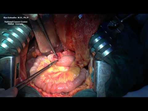 Pylorus Preserving Pancreaticoduodenectomy (Traverso-Longmire Procedure)