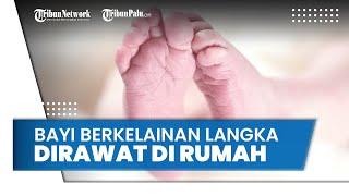 Organ Perut Bayi Keluar karena Miliki Kelainan Langka, Terpaksa Dirawat di Rumah karena Biaya