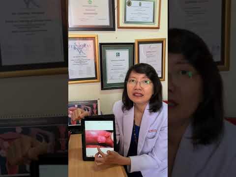 H pylori dysbiosis