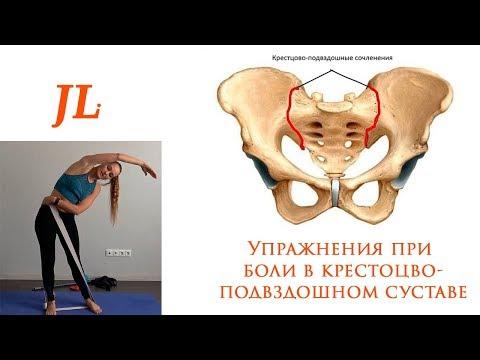 Упражнения при боли в крестцово-подвздошном суставе. Дисфункция КПС.