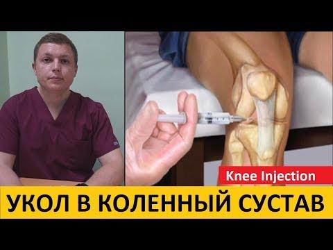 Внутрисуставные инъекции в коленный сустав | Knee Injection