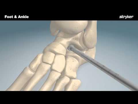 Antibiotice pentru dureri articulare