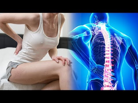 Die Bilder die Osteochondrose schejnogo der Abteilung