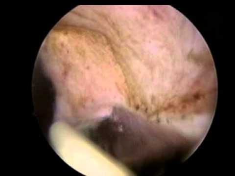 Batteri semina in segreto alla prostata