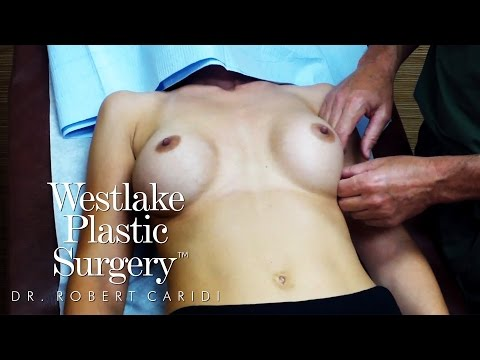 Educational Video: Excessive Lateral Movement of Breast Implants