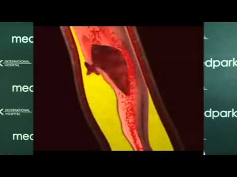 Respiratory papillomatosis antiviral