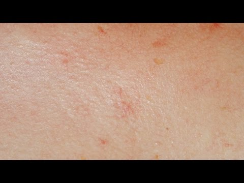 Les mains au psoriasis de la photo