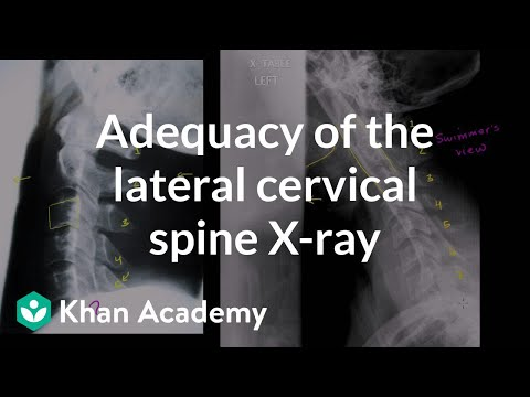 A thumbnail for: Cervical Spine