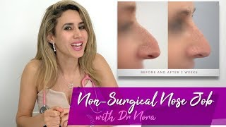 Non-Surgical Nose Job in 15 Minutes | Treatment Case Study and Risks
