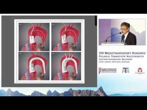 Zaopatrywanie tętniaków łuku aorty metodą debranchingu