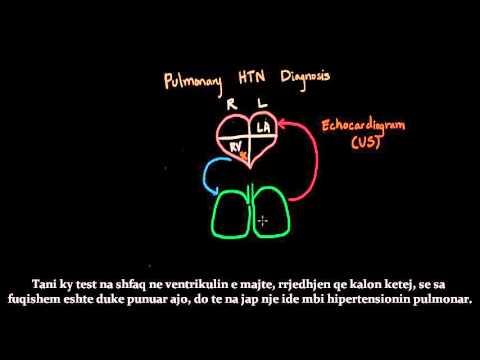 Droga për uljen e presionit të gjakut me diabet mellitus