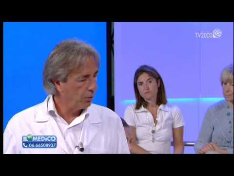 Kalanchoe contro risposte varicosity