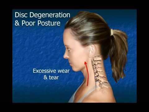 Mga produkto para sa buhok paglago na may androgenetic alopecia