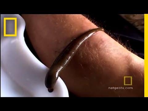 Bata pag-ubo sa pagsusuka worm