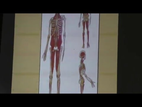 Verformen Arthrosen des Metatarsophalangealgelenks des Fußes