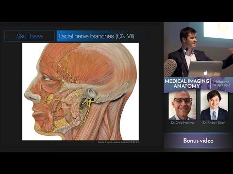 Asthenischen Syndroms und Hypertonie