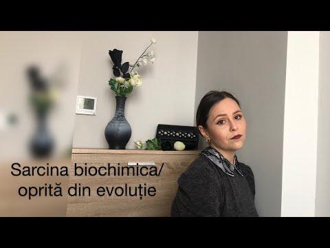 Tratament cu alflutop pentru artroză