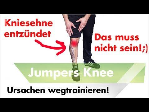 Quetschungen des Knies, wie zur Behandlung von