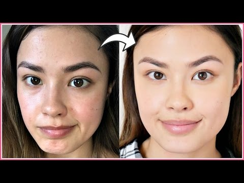 How I Manage My Breakouts (Skin Reactions) | My Experience with Allergic Reactions