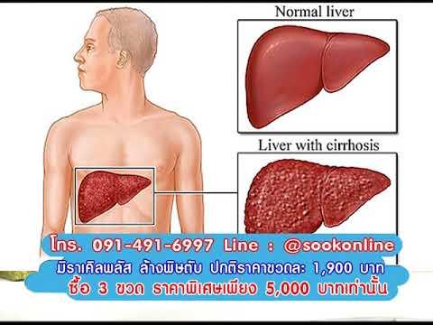 Exfoliative erythroderma โรคสะเก็ดเงินหรือ