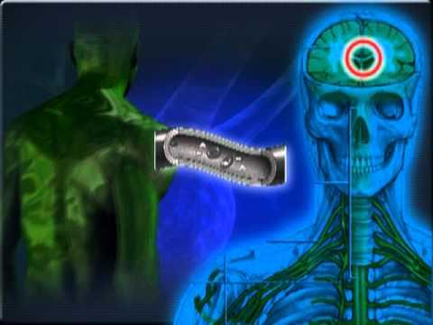 Le malattie che promuovono trombosi