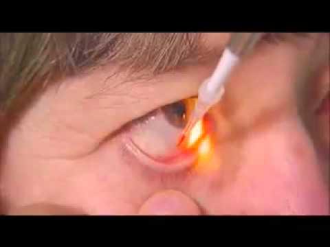 Vidal specialist 2020 oftalmologie descărcare