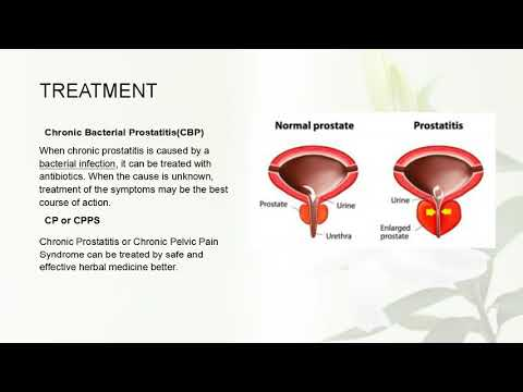 Folk remedies for chronic prostatitis