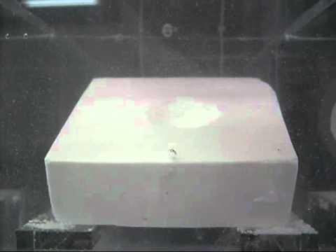 Raggi X della descrizione dellanca coxartrosi