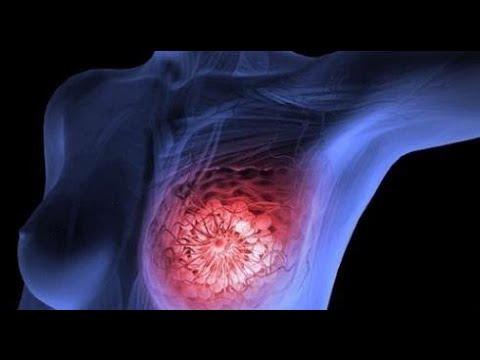 ¿Cómo Se Relacionan Los Disruptores Hormonales Con El Cáncer?