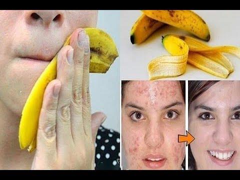 Советы дерматолога как избавиться от пигментных пятен на лице