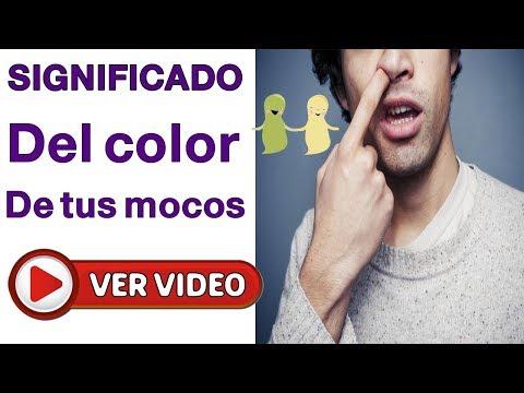 Los parásitos en el alce del vídeo