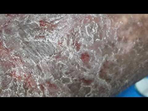 Creme a dermatite atopic su una faccia