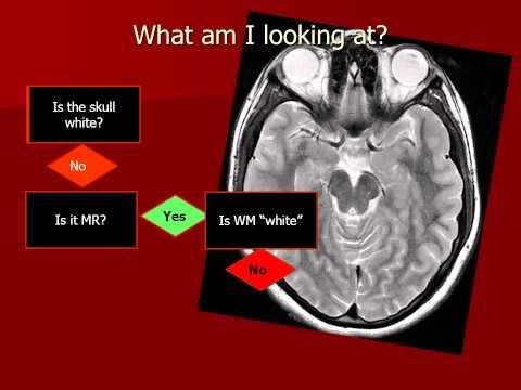 Jak rozróżnić obrazy CT od MR?