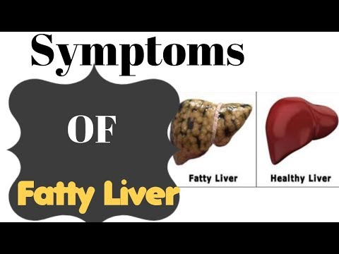 Video Most Common Symptoms Of Fatty Liver And The Best Way To Cleanse It