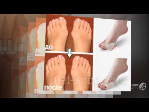 Ортопедическая обувь для вальгусной стопы для детей
