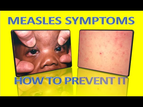 Video measles symptoms,health complications and How to prevent it (rubeola)