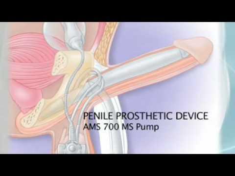 Video Blowjob mit Prostata-Massage herunterladen