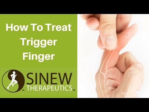 Video How To Treat Trigger Finger and Speed Recovery