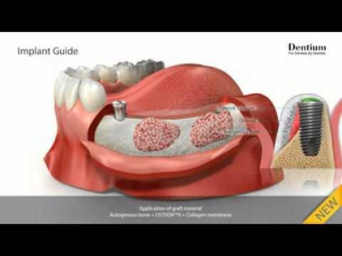 Мост из 3 зубов с опорой на импланты