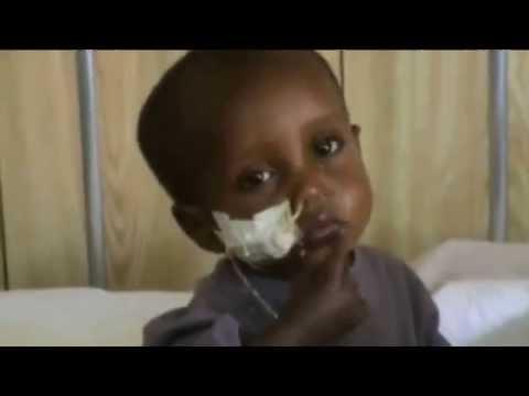 Presentación asistencia sanitaria en el Hospital Rural de Gambo (1) africa etiopia gambo