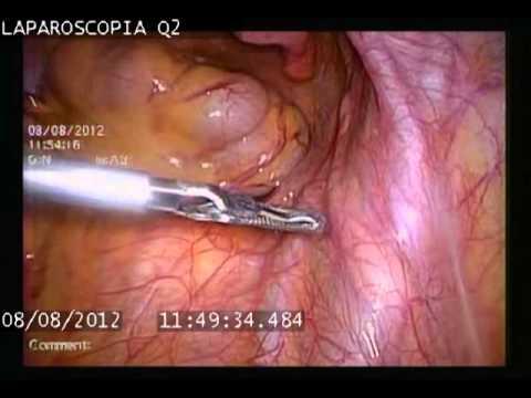 การปลูกถ่ายอวัยวะเพศชายการผ่าตัด