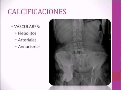 Principios básicos de la radiología simple y el ultrasonido. (sesión 1).