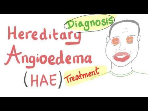 Liječenje hipertenzije prvi stupanj