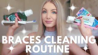 Gambar cover Braces Cleaning Routine | Water Flosser, Keeping Teeth White, Brushing etc.