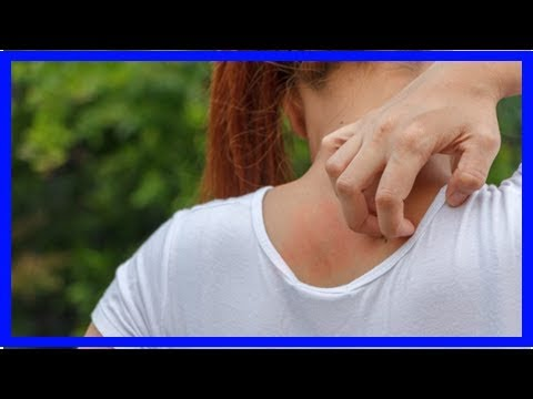 Neurodermatitis della testa e il collo