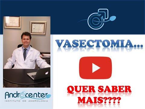 Vasectomia - como é realizada a cirurgia?