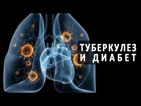 Медовая вода натощак при диабете 2 типа