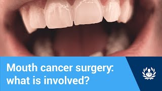 Mouth cancer surgery: what is involved?
